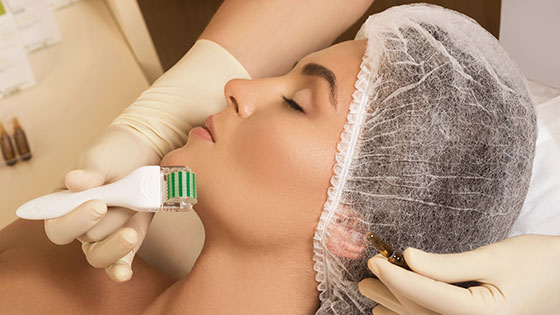 Professional Micro Needling in Calgary: Dermaroller® at Sculpt