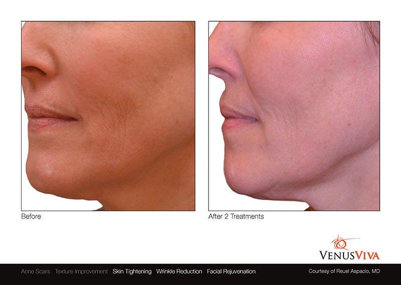 VenusViva_ReuelAspacio_Face_3Tx_2-1.jpg