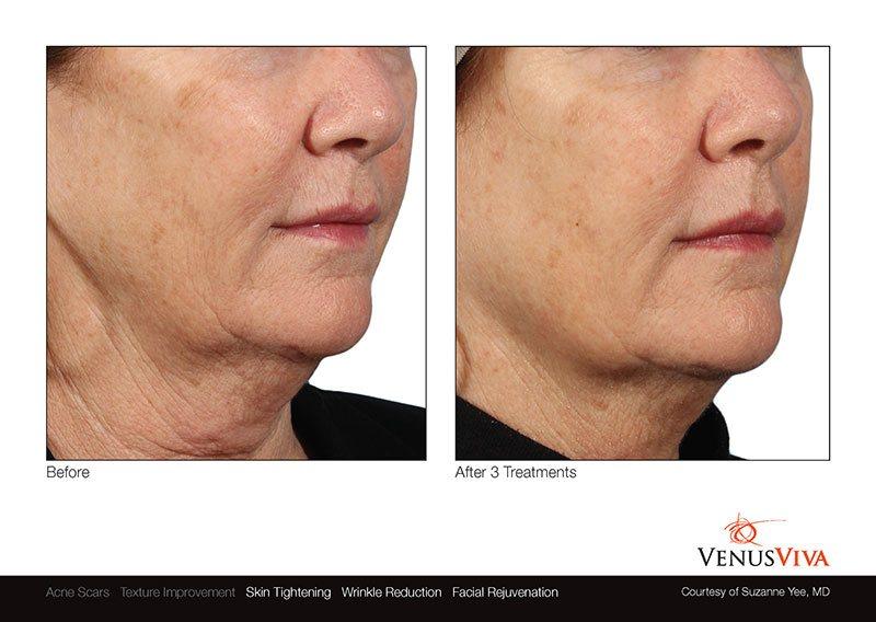 VenusViva_SuzanneYee_Face_3Tx_4-1.jpg