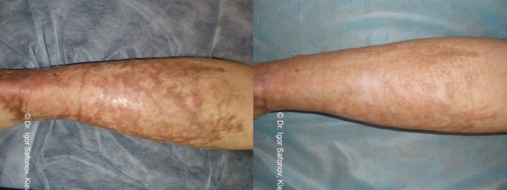 dermaroller-scar-1-1024x384.jpg