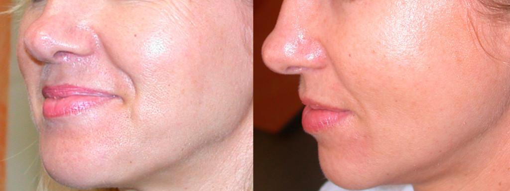 dermaroller-skin-tightening-1-1024x384.jpg