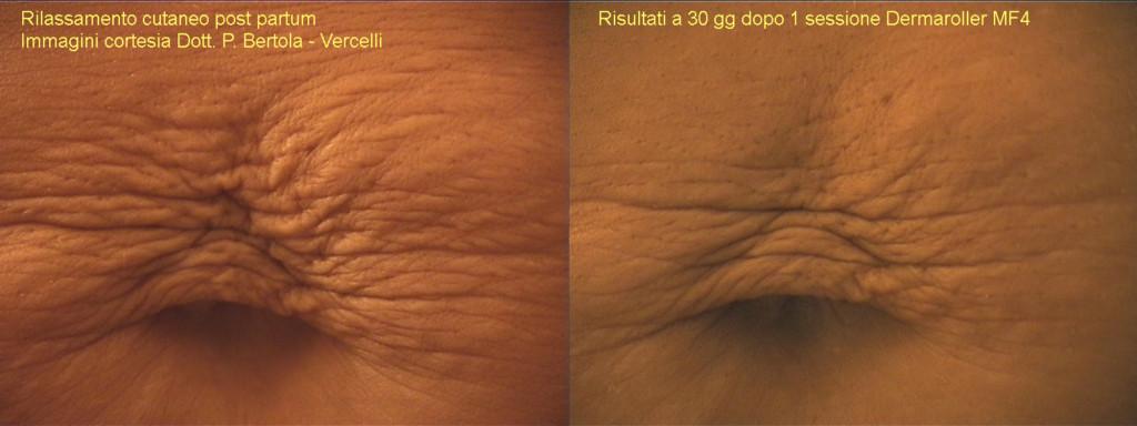 dermaroller-stretch-marks-1-1024x384.jpg