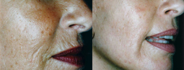 dermaroller-wrinkles-3-590x225.jpg
