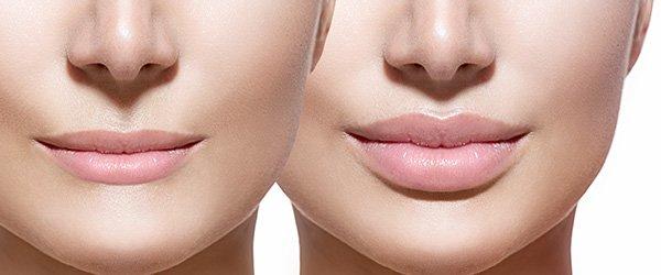 Lip Injections in CalgarySculpt Aesthetics